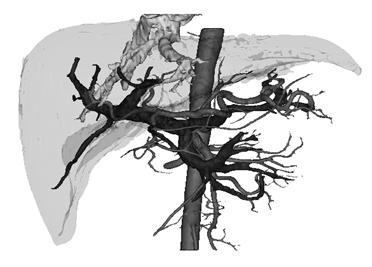 Компьютерная томография, что это такое, как проводится
