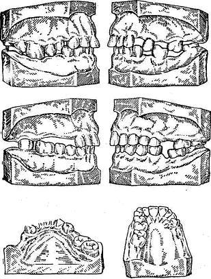 деформация зубных рядов