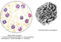 eozinofili-v-mazke-iz-vlagalisha