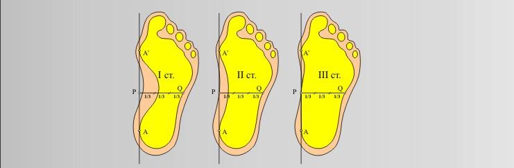 Как сделать большую степень плоскостопия