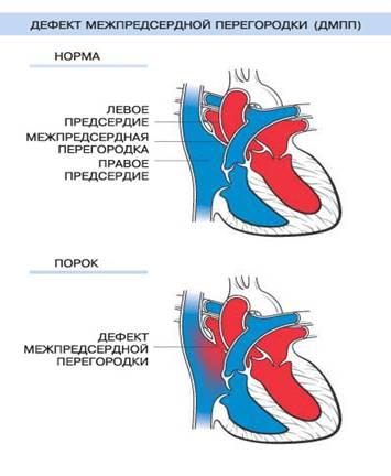 Схема ДМПП