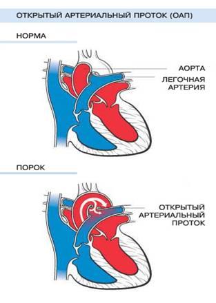 Схема ОАП.