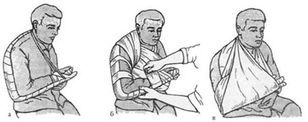 Транспортная иммобилизация переломов плечевой кости