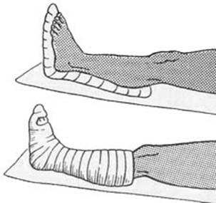 Имобилизация голеностопного сустава лечение болей в спине суставах в алматы