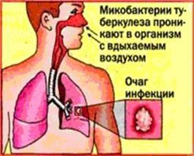 mozhno-li-zarazitsya-tuberkulezom-cherez-spermu