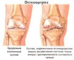 Жидкость в коленом суставе хондромарин эндопротезирование коленного сустава в санктпетербурге