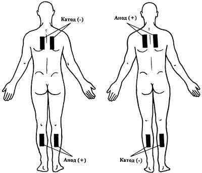 Вовлечение. наложение электродов вариант 1. Атрофия.  Физиотерапия.