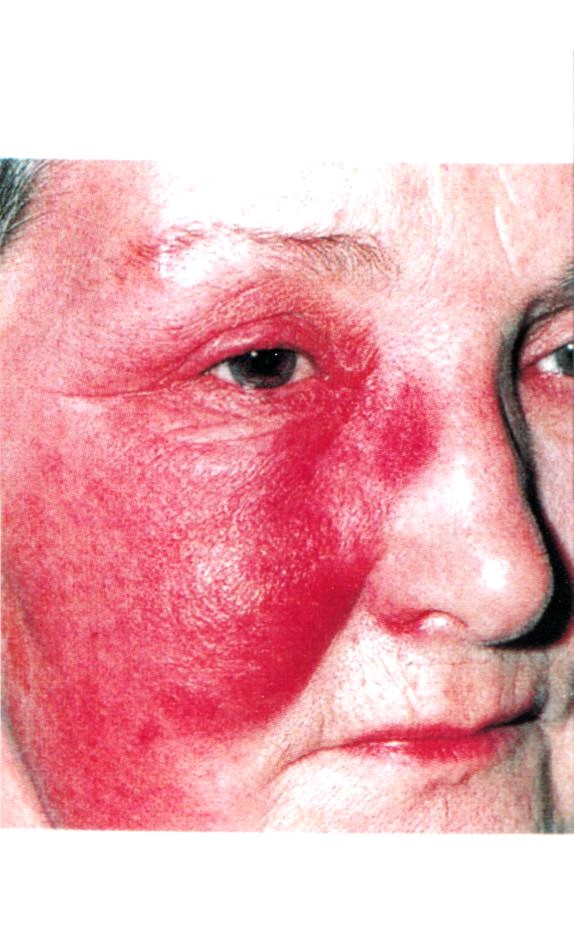 Заболевание рожа с картинкой