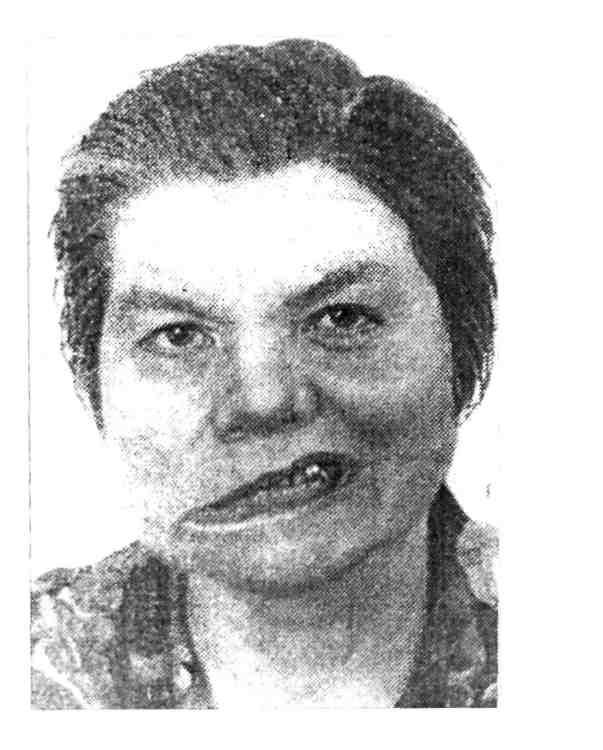 невропатия лицевого нерва фото отмечает, что этой