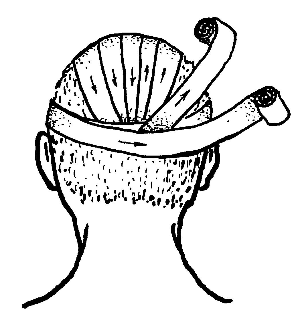 Картинка наложения повязки чепец