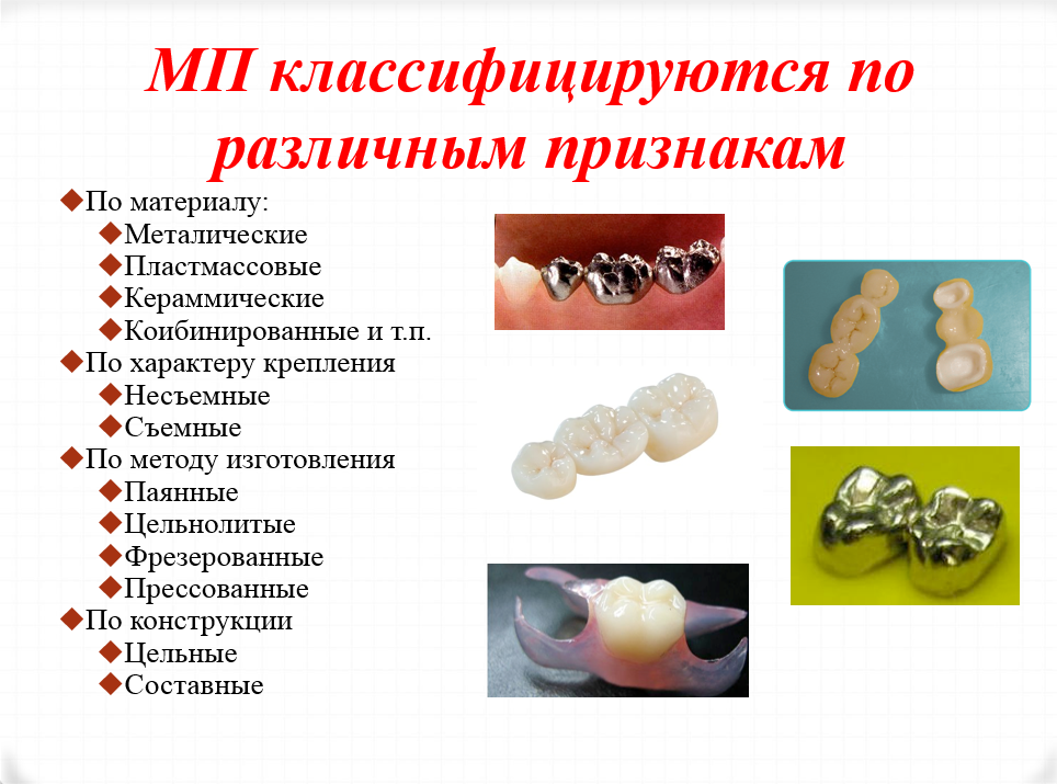 классификация протезов